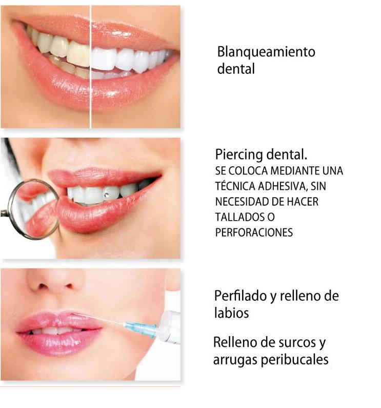 Servicios Clínica Dental Garcia Bernardo